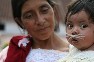 Life-changing surgery for the poor of Guatemala