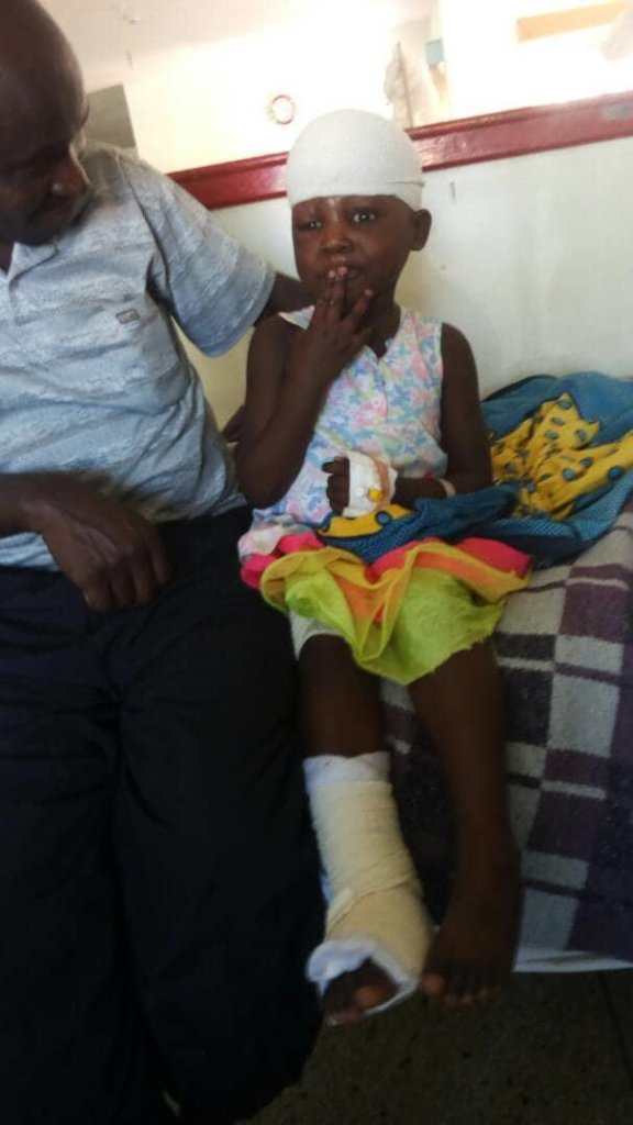 Plastic Surgery For Gift A Victim Of Car Accident Globalgiving