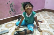 Empower 800 children with birth defects in Chennai