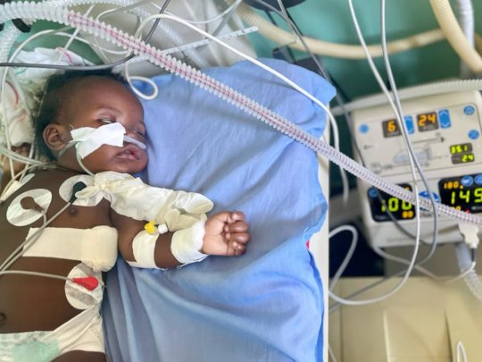 baby who needed transportation in an ambulance