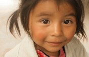Child malnutrition in the Bocacosta of Guatemala