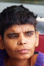 Physically handicapped Rasheeda is able to see now