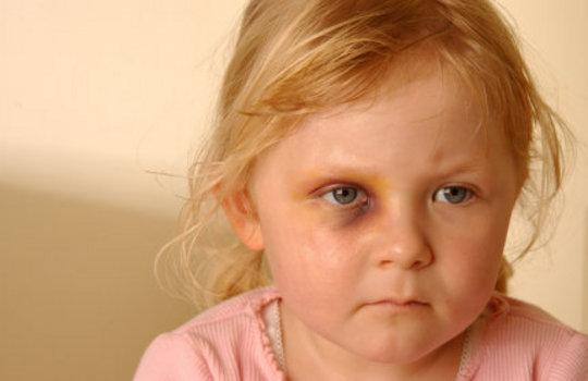 Child Abuse Knows No Boundaries