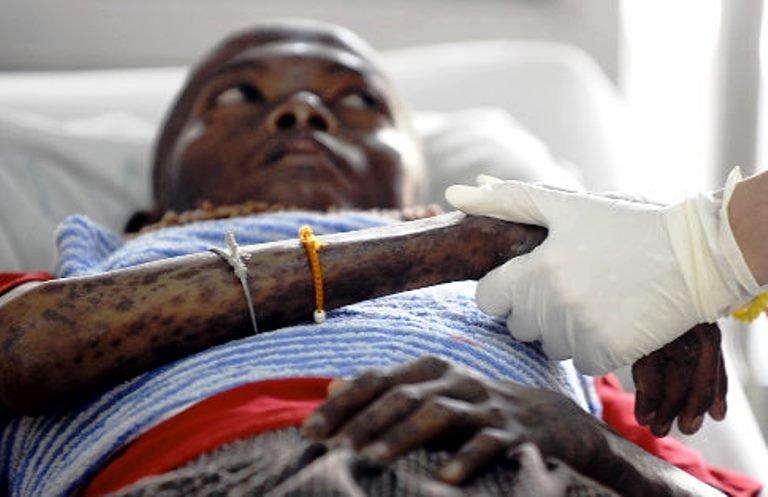 Reports On Prevent Hiv