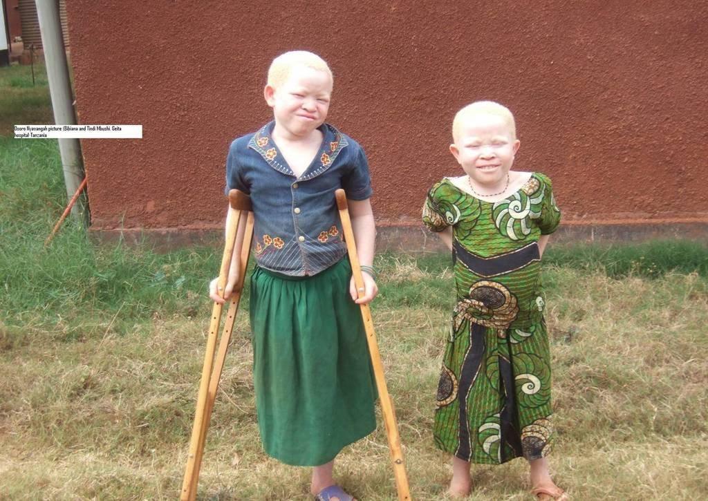Save 150 Albino Person from Skin Cancer inTanzania