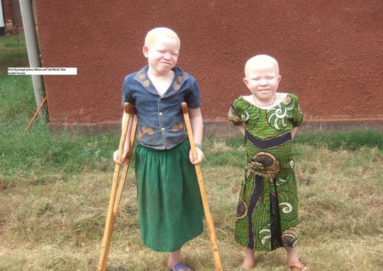 Save 150 Albino Person from Skin Cancer inTanzania