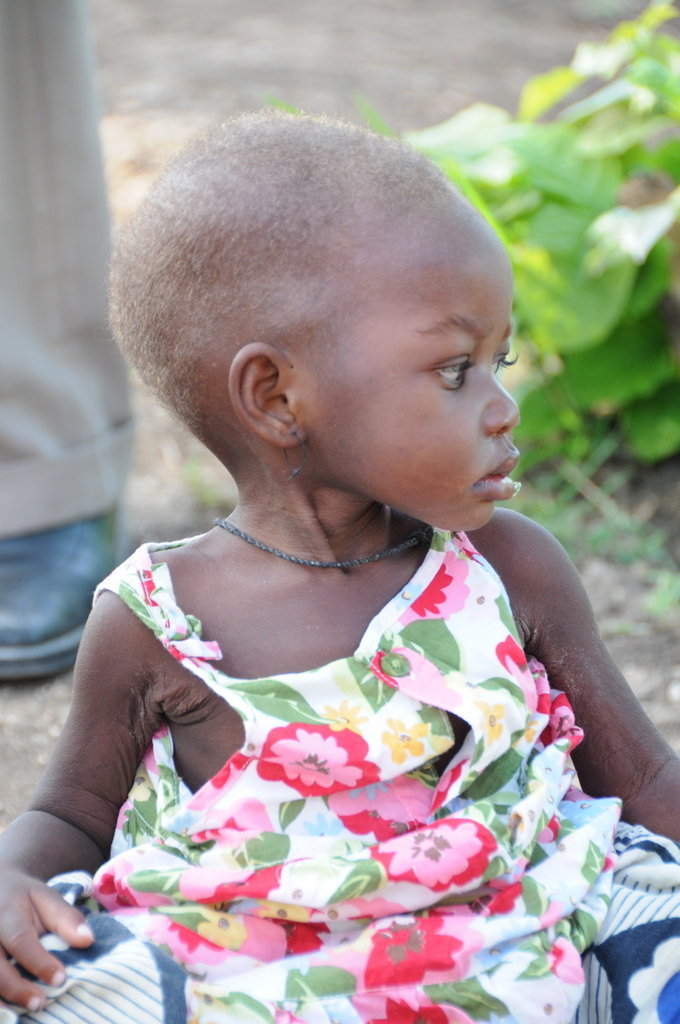 Treat Children for Malnutrition in Tanzania