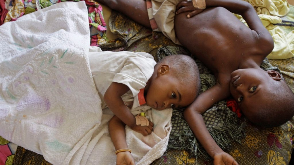 Malaria: kills children in Africa