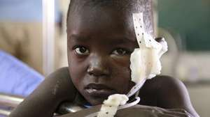 Injured child in Juba crisis