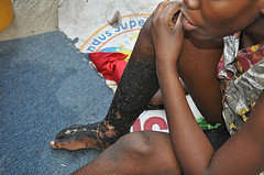 Care for the neglected