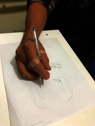 Fernando Using His Prosthetics