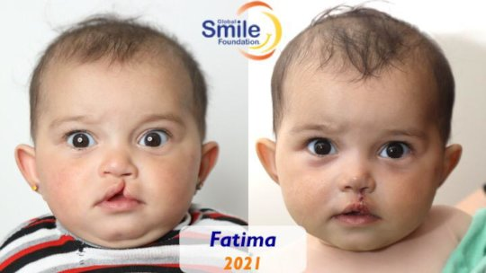 Fatima doing well after her surgery!