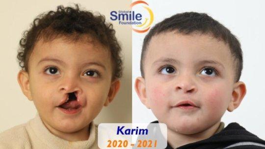 Karim's healthy smile!