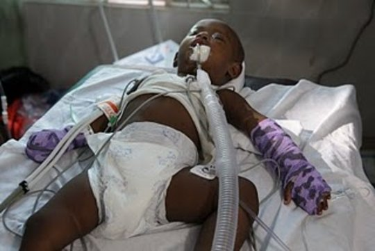child after surgery