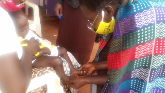 Village Health Workers assess swelling of feet
