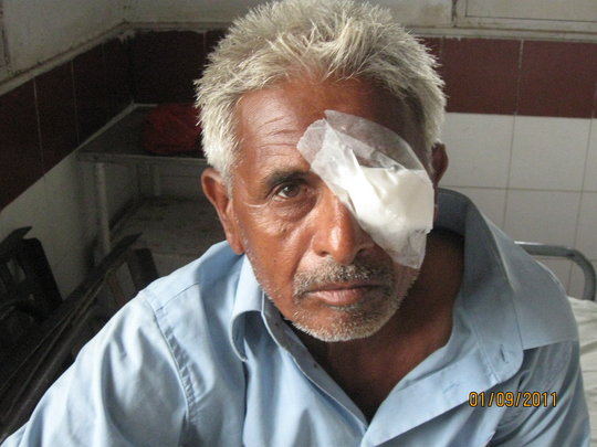 A case of successful cataract surgery
