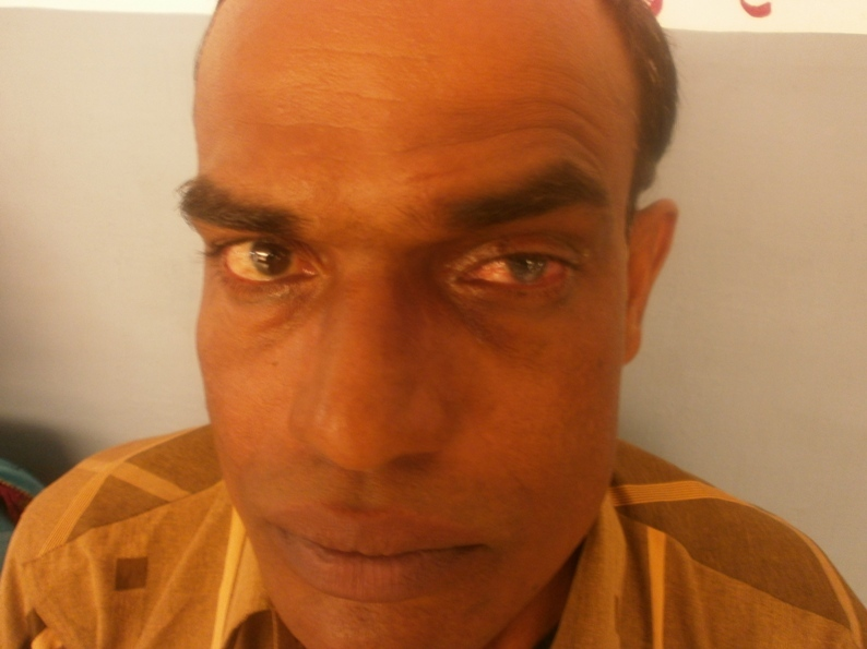 Patient operated for Keratoplasty