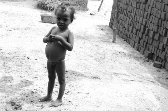 Malnutrition is common