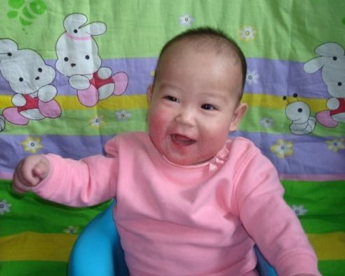 Fund critical surgery for 6 Chinese orphans