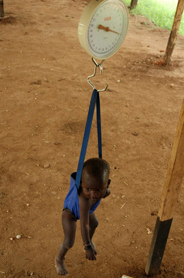 Malnourished Child being weighed