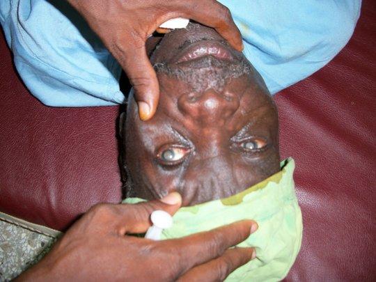 Cataract patient
