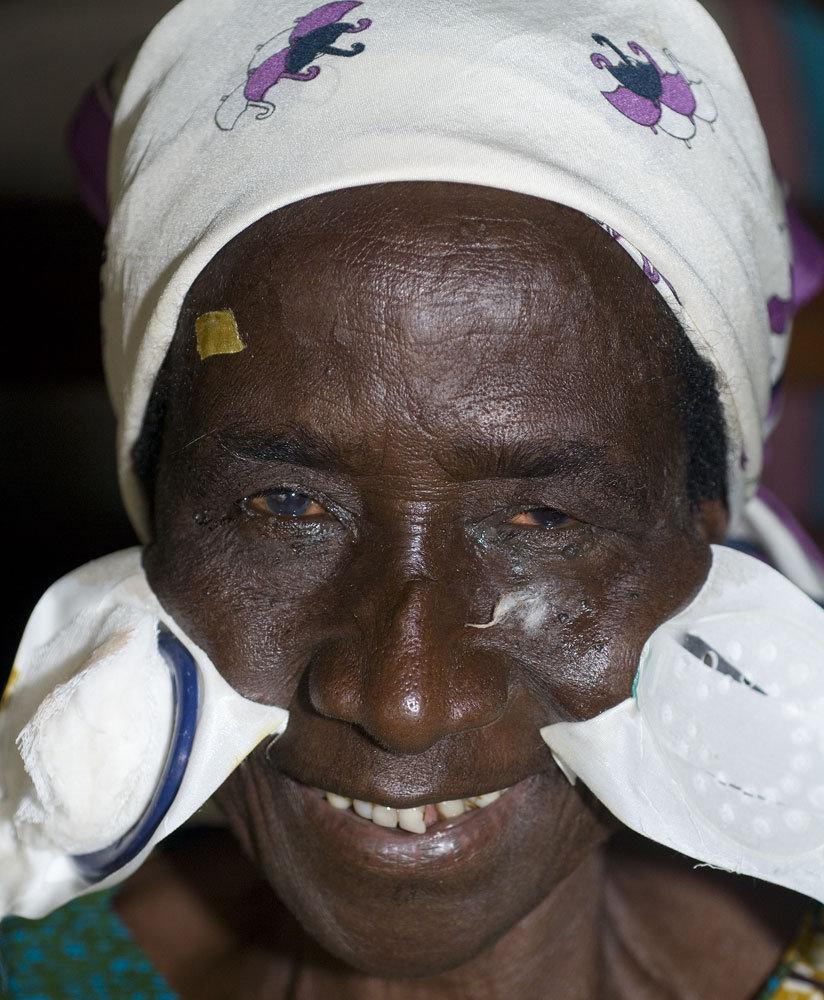 Outreach Eye Camps in Ghana