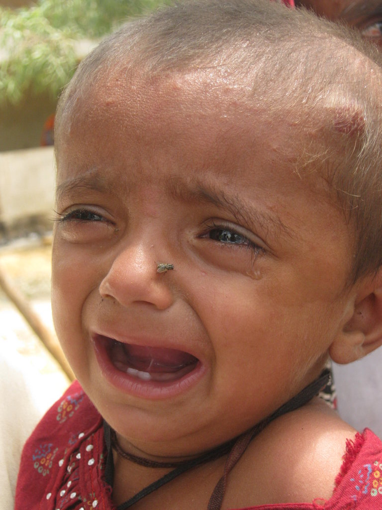Child with Skin disease