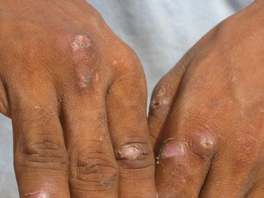 IDPs drinking flood water & find skin disease