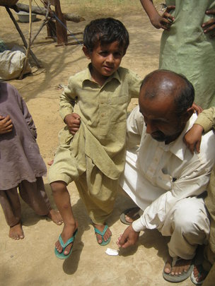 Child showing water borne disease