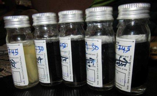 Water test: Black color shows presence of coliform