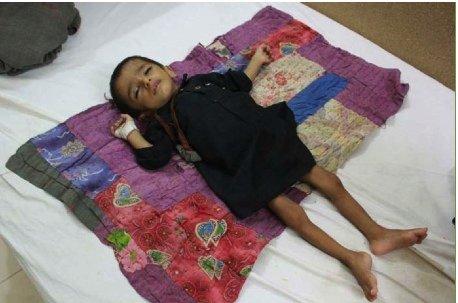 Child in pediatric ward