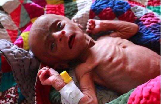 Malnourished Infant