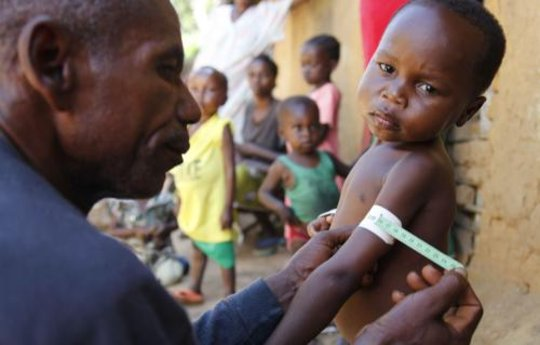 DR Congo nutrition program - Photo courtesy of ACF