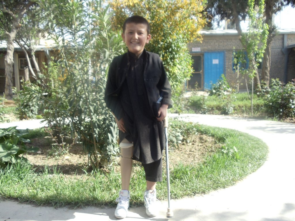 Essamudin smiling after receiving his new leg