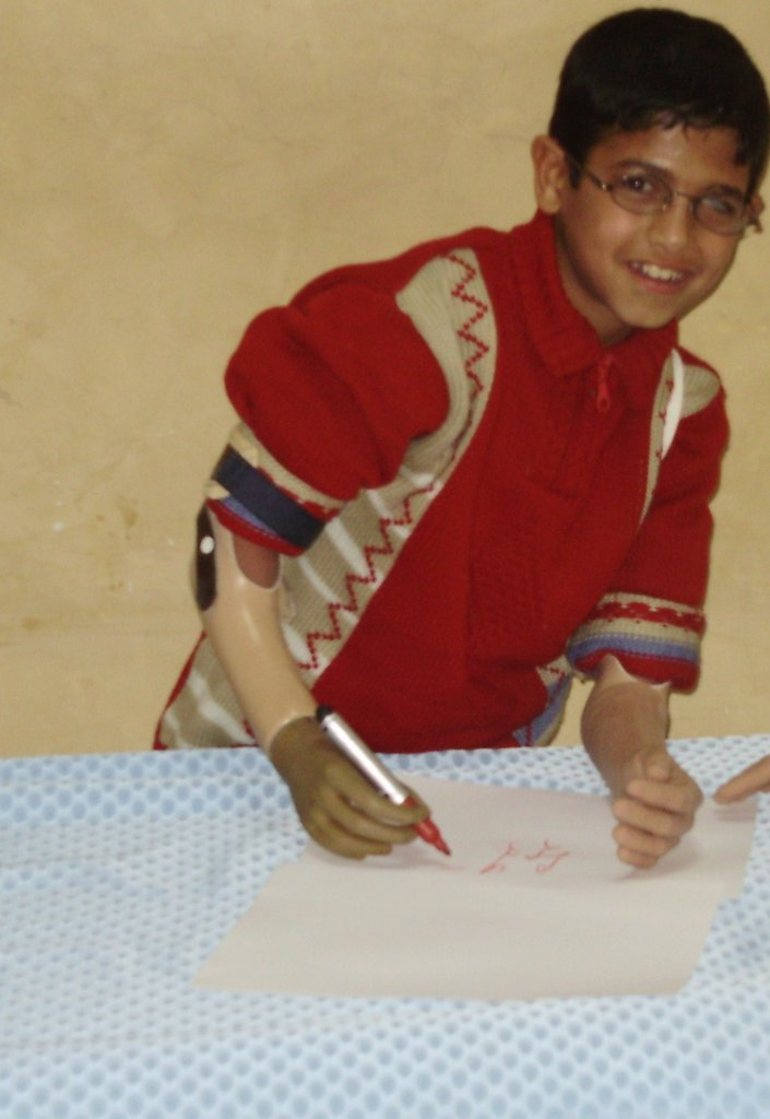 Mohammad after he received his new prostheses!