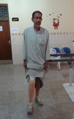 Iraqi man being fitted with a new leg