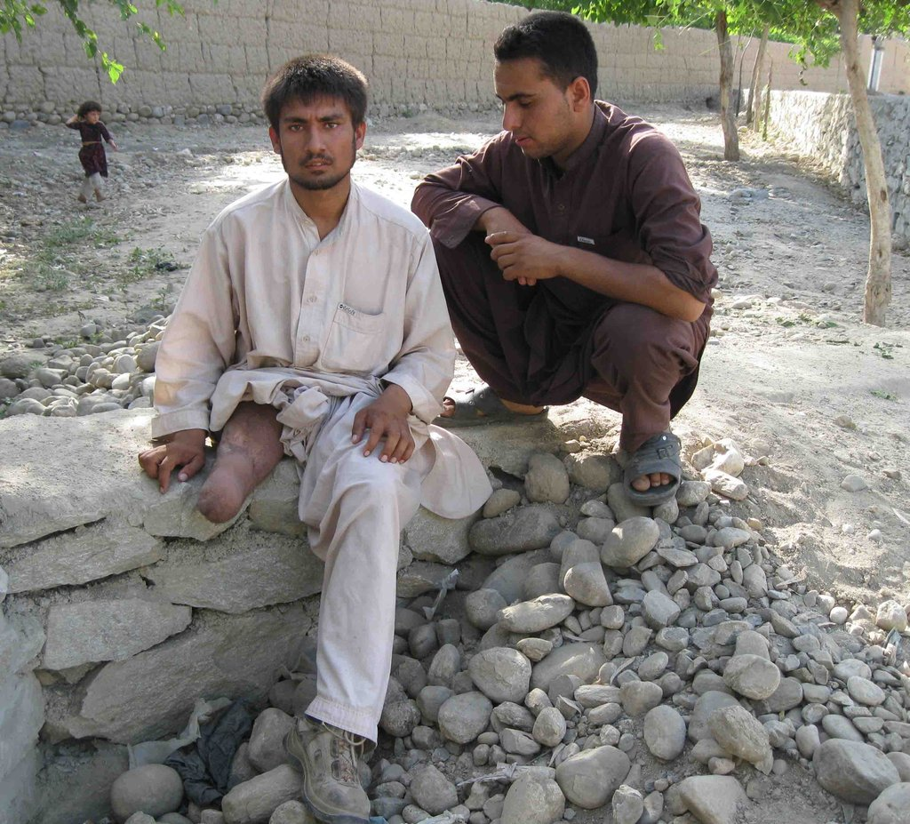 Landmine survivor living in Afghanistan
