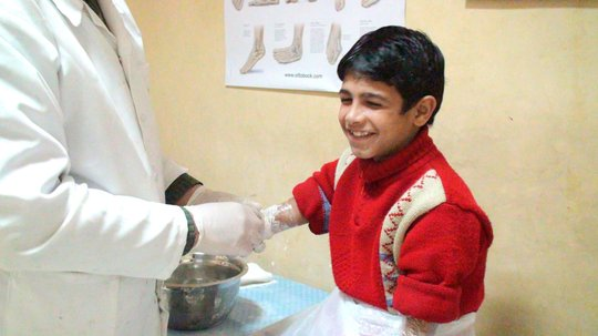 Mohammad is fitted with new prosthetic arms/hands