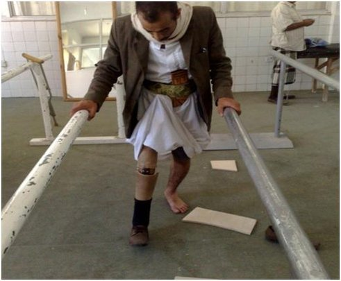 Learning to walk with prosthetic legs