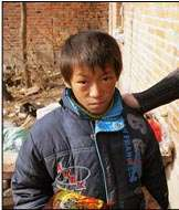 Ling, an HIV-positive child supported by PATS