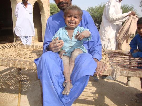 Poor health of child in new villages needs medicin