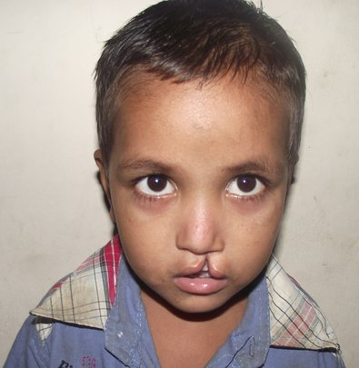 Tareque Before His Incredible Surgery