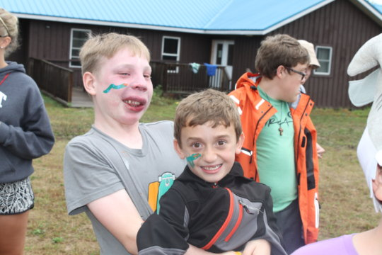 Help kids with facial differences become leaders