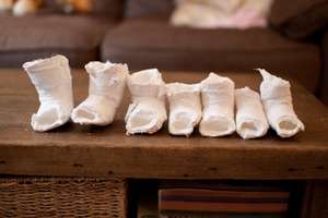 Kiki's plaster casts, used to correct her foot