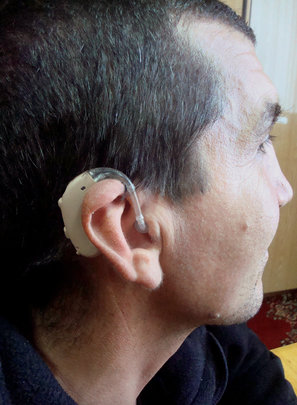 Serghei with hearing aid