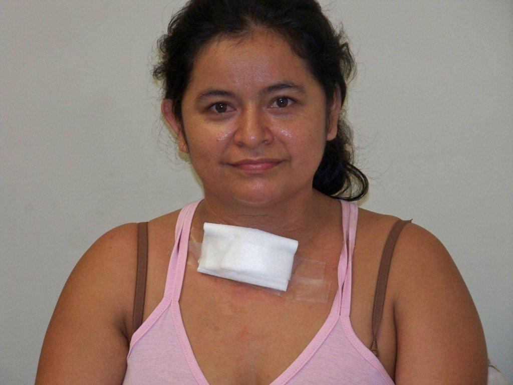 Provide thyroid surgery for 20 Ecuadorians