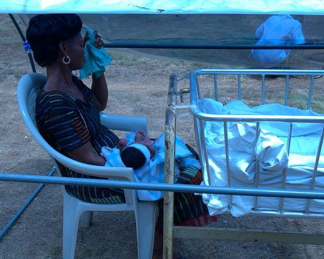 Treating Babies with Severe Jaundice in India