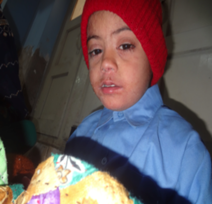 Child admitted  with measles