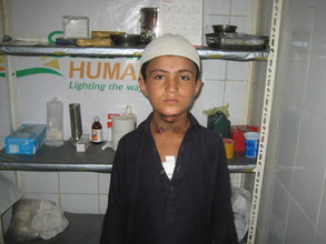 Aleem Before Treatment