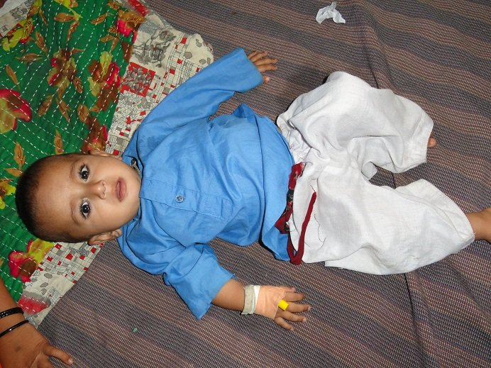 Child admitted at Pediatric Ward - Shikarpur